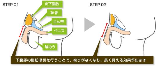 下腹部脂肪吸引式長茎術