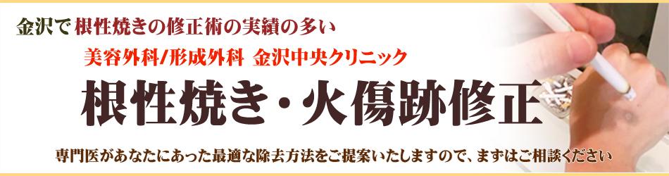 金沢で根性焼きの修正術の実績の多い金沢中央クリニック