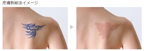 皮膚剥削法イメージ1